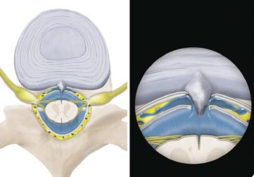 越來越多的腦脊液外漏是脊柱骨關節退變所致