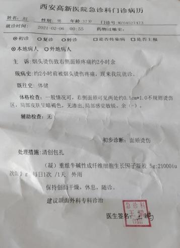 ▲病历显示,刘先生右侧面颊可见两处约0.5cm×1.0不规则烫伤区