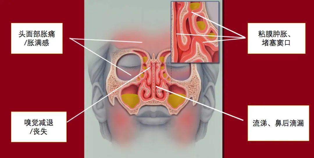 炎 手術 副 鼻腔 慢性 副鼻腔炎の手術をしました。ちくのう症/慢性副鼻腔炎の治療体験日記