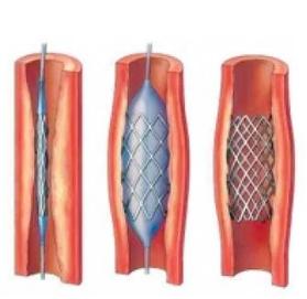 颈动脉支架植入