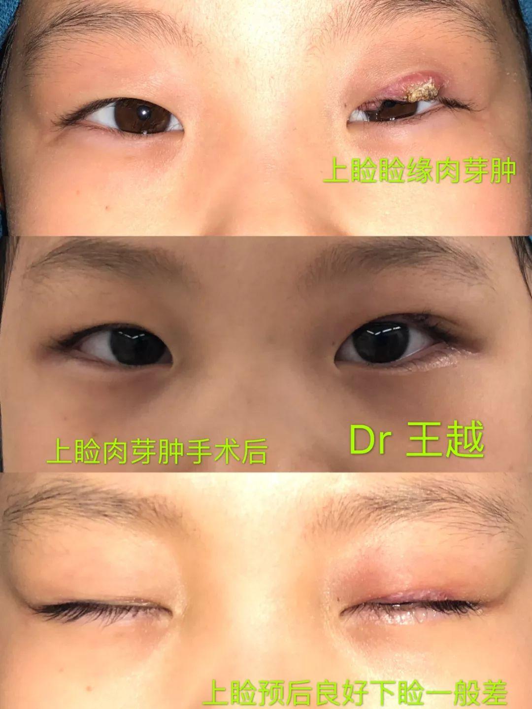 手術 霰粒 後 腫 眼形成手術手技 動画説明【化膿性霰粒腫】