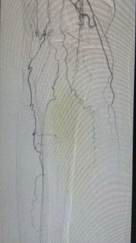 术前膝盖处血管道岔
