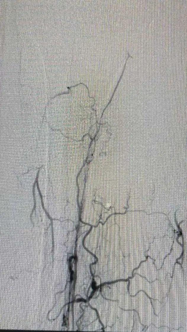 逆向造影小腿血管道岔